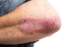 rhumatisme psoriasis ostéopathie